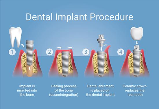 Dental implant procedure San Luis Obispo