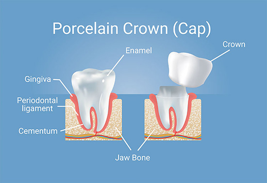 Porcelain crowns procedure at San Luis Obispo dentist Friendly Smiles