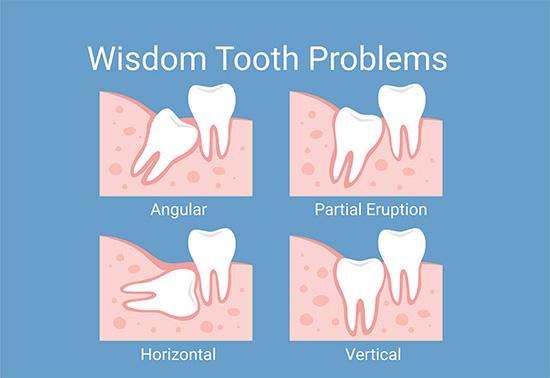 Diagram of wisdom teeth